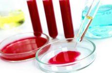 Аналіз на гормони щитовидної залози