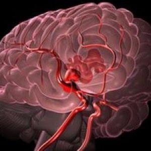 Ангіодистонія — класифікація, ознаки й лікування. Чи беруть в армію при ангіодистонії?
