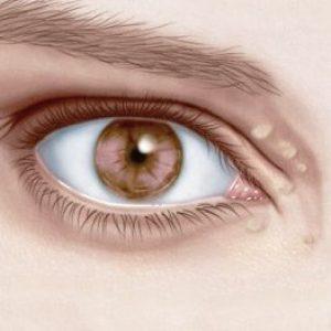 Чим відрізняється ксантелазма від ксантома, симптоми і лікування. Прогноз на одужання