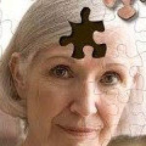Що таке хвороба Альцгеймера, причини виникнення та як патологія проявляється на різних стадіях