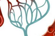 Що таке мікроангіопатія? Види патології та прогноз на життя