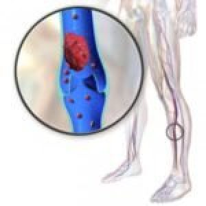 Що таке тромбоз, механізм утворення тромбу, профілактика
