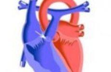 Яка середня тривалість життя при стенозі легеневої артерії?