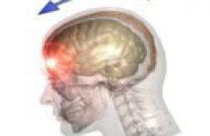 Класифікація черепно-мозкових травм, їх симптоми та лікування