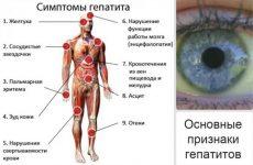 Основні причини нудоти і болю в правому підребер'ї