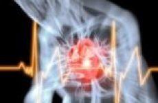 Причини раптової серцевої смерті, як їй запобігти?