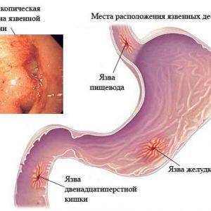 Блювота кислотою, причини, лікування, які ліки прийняти