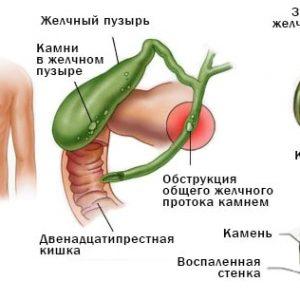 Блювота при вагітності жовчю: з-за чого виникає, як лікувати