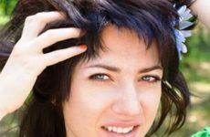Себорея шкіри голови лікування в домашніх умовах