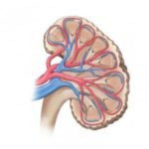 Синдром Гудпасчера: причини, ознаки, діагностика і лікування