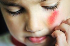 Садна на обличчі: лікування в домашніх умовах