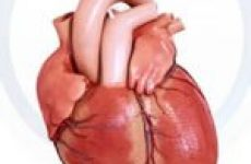 Стенокардія напруги — як розпізнати і лікувати
