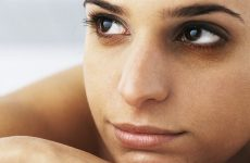 Темні кола під очима у жінок: причини і як позбутися