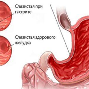 Нудота і блювота на пізніх термінах вагітності
