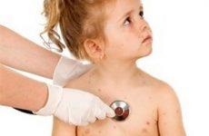 Поради батькам як розпізнати, лікувати і проводити профілактику вітряної віспи у дітей