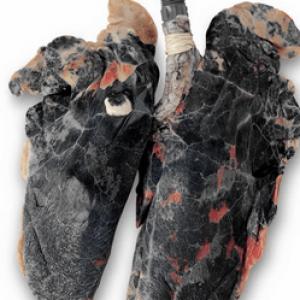 Очищення організму після відмови від куріння: терміни і етапи, відновлення