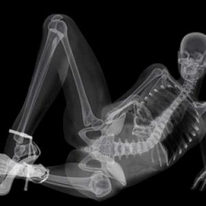 Як часто можна робити рентген в місяць і рік дитині і дорослому