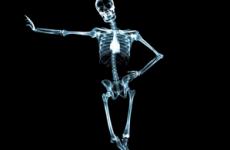 Рентгенівське випромінювання (промені): небезпека для організму людини