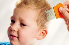 Засоби від вошей і гнид для дітей і дорослих: огляд кращих