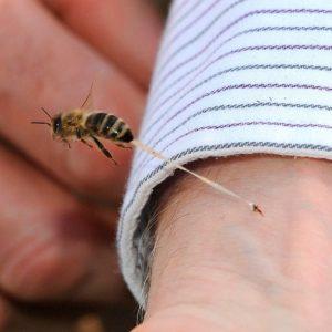 Вкусила бджола: що робити в домашніх умовах, як надати першу допомогу