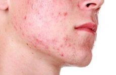 Лікування демодекозу на обличчі: ефективні засоби, народні засоби