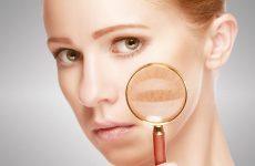 Пігментні плями на обличчі – боротися чи перечекати + 6 ефективних профілактичних заходів
