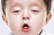 Чому виникає гавкаючий кашель у дитини без температури