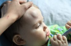 Симптоми при струсі мозку у дитини: перша допомога та можливі наслідки травми