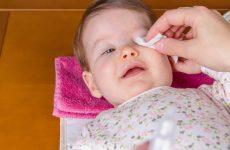 Ячмінь на оці у дитини: повний список засобів і способів лікування