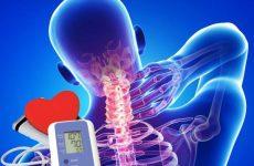 Аритмія при остеохондрозі: тахікардія і брадикардія, як лікувати мануальною терапією