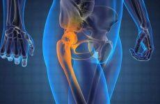 Артралгія кульшового, колінного, плечового і гомілковостопного суглобів: причини, симптоми і лікування