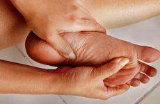 Артрит стопи ніг: симптоми і лікування
