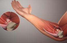 Біль у ліктьових суглобах рук: причини і захворювання, як проводити їх лікування за допомогою методів мануальної терапії