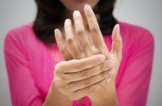 Болять руки при остеохондрозі шийного відділу хребта: оніміння і інші симптоми