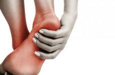 Горбистість кісток та її патології: остеохондропатия і перелом