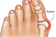 Бурсит великого пальця стопи ноги: симптоми і лікування