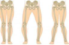 Деформація стегнової кістки за вальгусному і варусному типу: чому виникає деформація стегна, як її можна лікувати у дитини і дорослої людини
