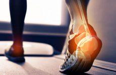 Деформуючий остеоартроз гомілковостопного суглоба: причини і симптоми різних ступенів патології, лікування