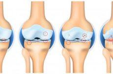 Деформуючий остеоартроз колінного суглоба: причини та симптоми, методи лікування за допомогою мануальної терапії