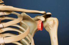 Деформуючий остеоартроз плечового суглоба: причини і симптоми, ступеня руйнування суглоба і лікування методами мануальної терапії