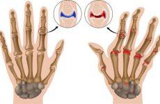 Деформуючий остеоартроз суглобів кистей рук: причини і симптоми при різних ступенях, як лікувати за допомогою мануальної терапії