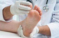 Деформуючий остеоартроз суглобів стопи: причини, симптоми і лікування за допомогою методів мануальної терапії