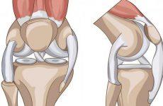 Дегенерація менісків колінного суглоба: ступеня та причини захворювання, симптоми і способи лікування
