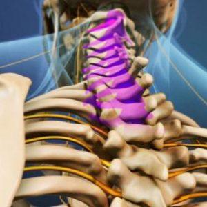 Дегенеративні дистрофічні зміни у відділах хребта: МР картина та клінічні ознаки, способи лікування методами мануальної терапії