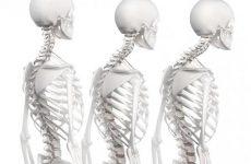 Гіперкіфоз хребта: порушення постави за кифотическому типу у дітей та дорослих, симптоми і лікування