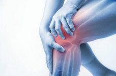 Хондромаляция надколінка колінного суглоба: ступеня та стадії, причини і клінічні ознаки, як лікувати за допомогою мануальної терапії