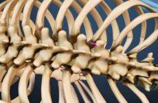 Кіста хребта: симптоми і лікування, причини виникнення та основні види, застосування мануальної терапії