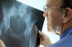 Коксартроз (артроз) стегнового суглоба: причини, симптоми і лікування цього захворювання за допомогою методів мануальної терапії