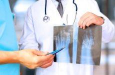 Комбіноване поздовжньо-поперечне плоскостопість: причини, симптоми і лікування методами мануальної терапії у дітей та дорослих