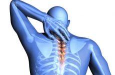 Компресійний перелом хребта: причини, симптоми, лікування та реабілітація